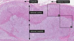 adrenal_gland__1__example_1__overview.jpg